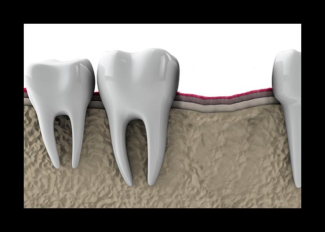 Preventing-Bone-Lose