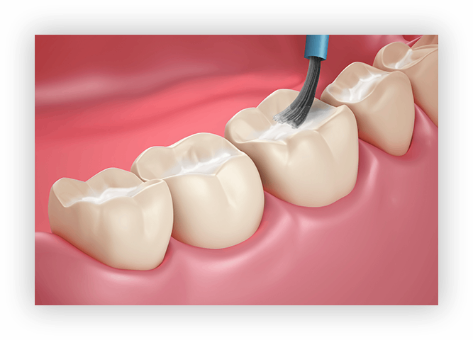 cavity-free-teeth