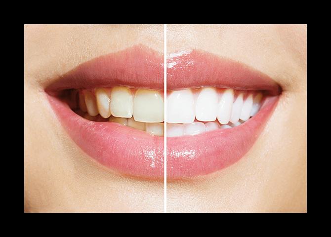 dazzling-white-smile