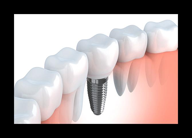 entire-implant-process
